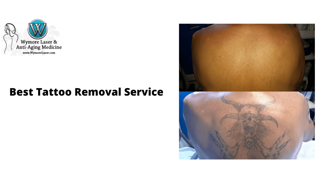 Call Us For The Best Tattoo Removal Service In Orlando!