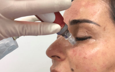 Microneedling Is One of the Best Face Treatments