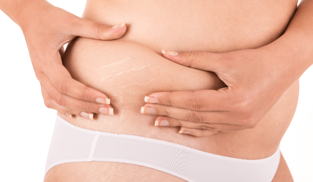 Stretch Mark Removal: Bring Brand New Skin Into The New Year