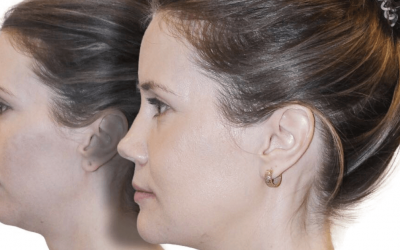 Is Non Surgical Jawline Contouring Right For You?