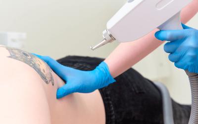 Laser Tattoo Removal In Orlando